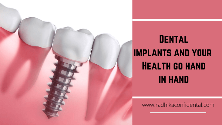 Dental implants and your Health go hand in hand