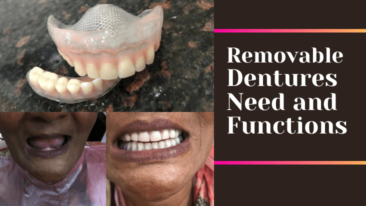 Removable Dentures Need and Functions